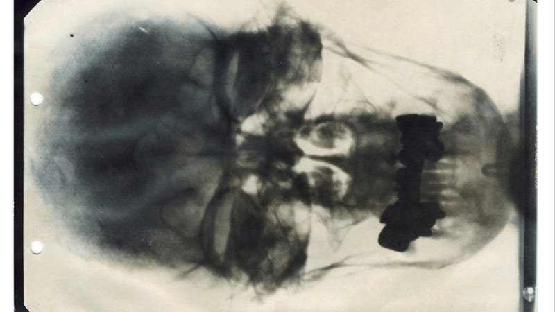 Illustration for article titled Behold, an X-ray of Hitler's head