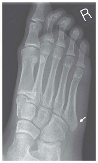 Illustration for article titled From Wiiitis to Wii Fractures: A Guide to Nintendoid Medical Conditions