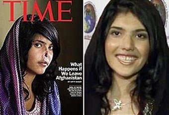Illustration for article titled Time's Afghan Cover Girl Gets A New Nose