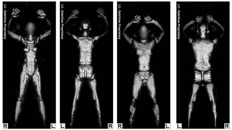 Illustration for article titled Time to Give The TSA a Piece of Your Mind About Full-Body Scanners