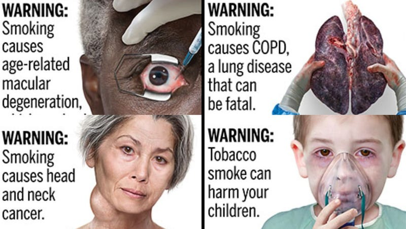 Illustration for article titled The FDA Is Previewing Some Grisly New Cigarette Warnings