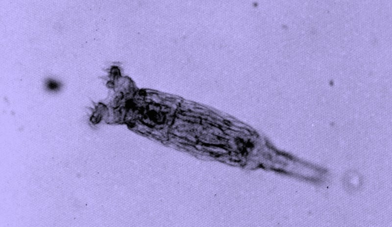 Illustration for article titled We Thought These Microscopic Invertebrates Never Had Sex. Maybe We Were Wrong.