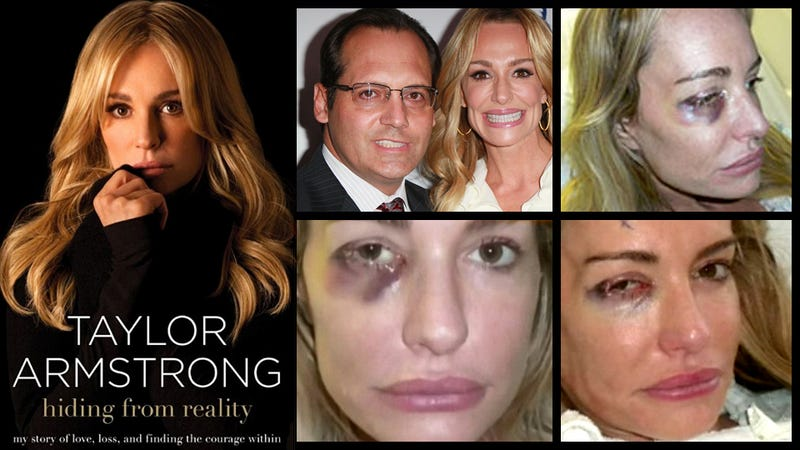 Illustration for article titled The Sad Tell-All Tale of Taylor Armstrong's Violent Marriage