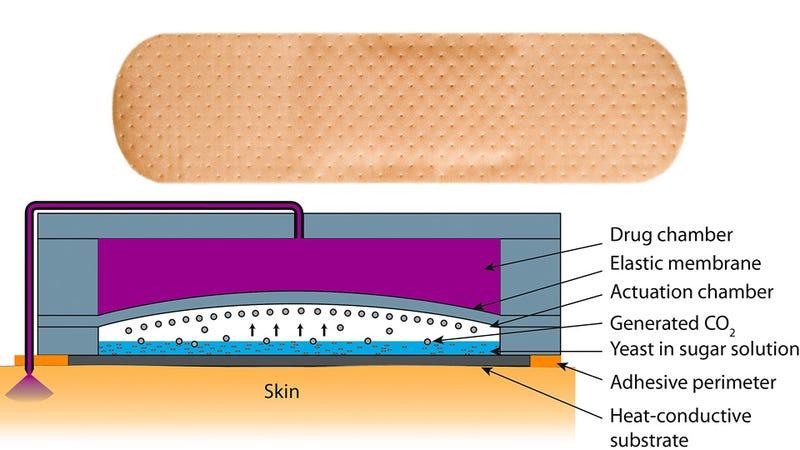 Illustration for article titled Body Heat-Powered Drug Delivering Bandages Means No More Needles