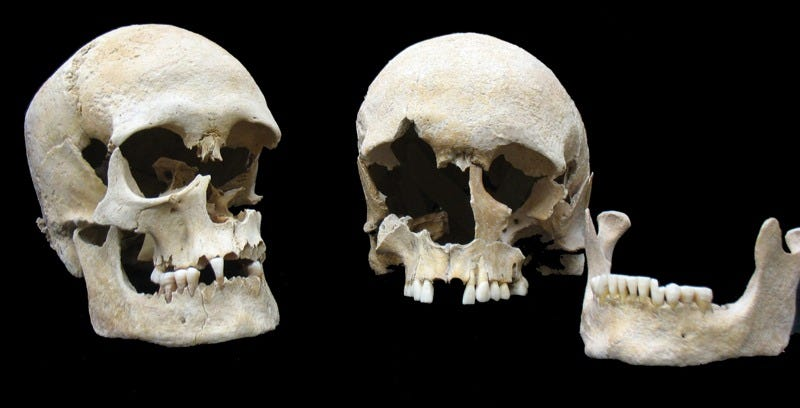 Skulls of two plague victims found in single grave at the Altenerding cemetery near Munich. (Images: State Collection of Anthropology and Paleoanatomy, Munich)