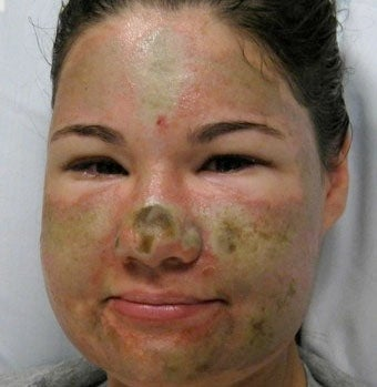 Illustration for article titled Acid Attack Hoax Prompts Theft Charges, Race Discussion