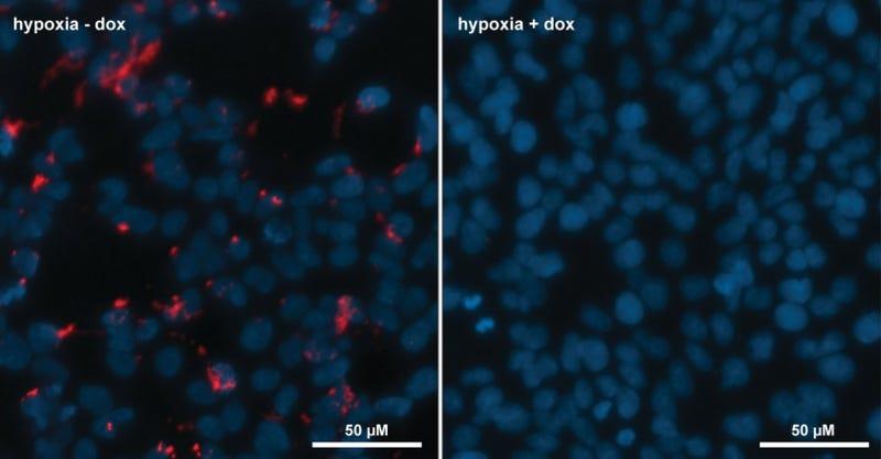 Izquierda: sin inhibidor. Derecha: con inhibidor. En rojo, la proteína HIF-1. Imágenes: Universidad de Southampton