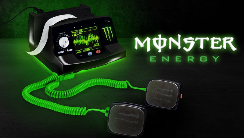 Illustration for article titled New Monster Energy Defibrillator Touts 1,200 Volts Delivered Straight To Heart