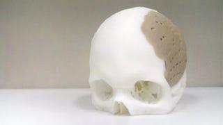 Illustration for article titled Reemplazan el 75% del cráneo de un paciente con un implante creado por impresora 3D