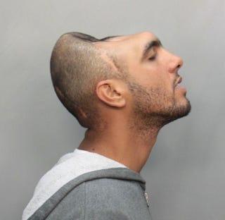 Illustration for article titled Half-Headed Man Takes World's Most Bizarre Mugshot