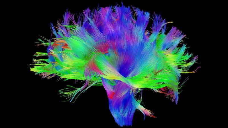 Illustration for article titled Demostrado: el cerebro de un artista es diferente a los demás