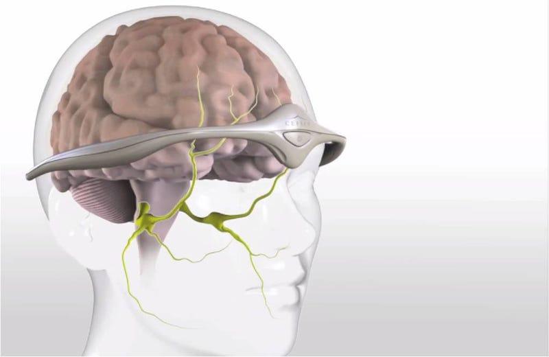 Illustration for article titled Un nuevo aparato, aprobado por la FDA, reduce y previene las migrañas