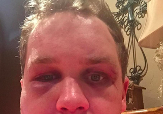Illustration for article titled MLB Prospect's Lawyer Releases Graphic Photos After Alleged Assault