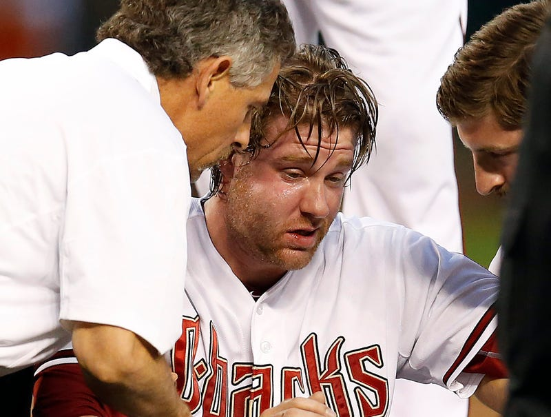 Illustration for article titled Archie Bradley Is Mostly Fine Except For His Giant Face