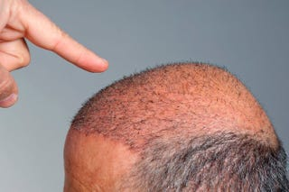 Illustration for article titled Hair Transplant In Islamabad, Pakistan