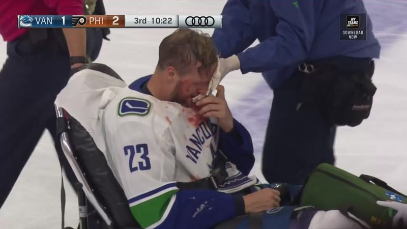 Illustration for article titled Canucks' Alexander Edler Taken Off On Stretcher After Gory Faceplant