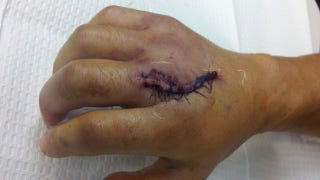 Illustration for article titled This Photo Of Dominick Cruz's Surgically Repaired Hand Is HOLY SHIT LOOK HOW BIG AND GROSS IT LOOKS