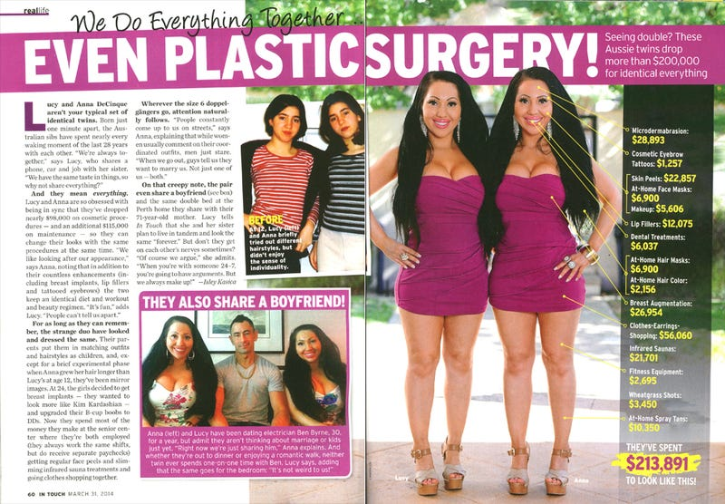 Illustration for article titled Twins With $98K of Plastic Surgery Share a Boyfriend