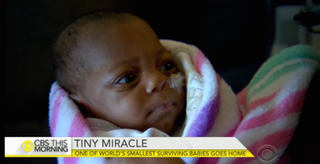Baby E'layah, who was born 14 weeks early, is one of the smallest babies ever born who has survived. CBS This Morning