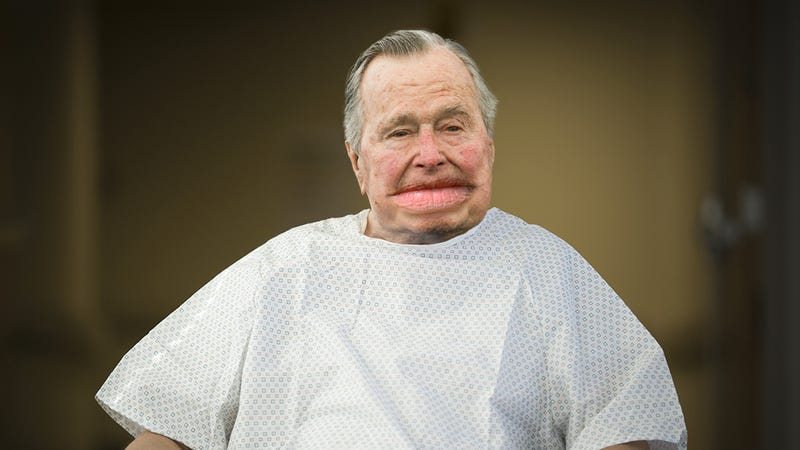Illustration for article titled Medical Crisis: George H.W. Bush Has Been Rushed To The Hospital For Emergency Lip Gigantification Surgery