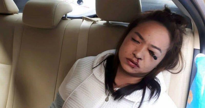 Illustration for article titled Un espantoso accidente recuerda por qué no deberías maquillarte en el coche