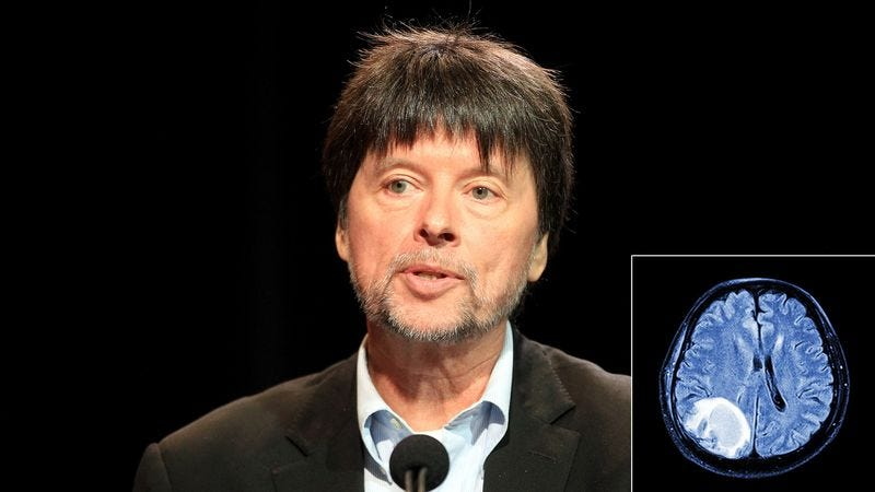 Illustration for article titled Doctors Restore Ken Burns' Full-Color Vision After Removing Massive Tumor From Filmmaker's Visual Cortex