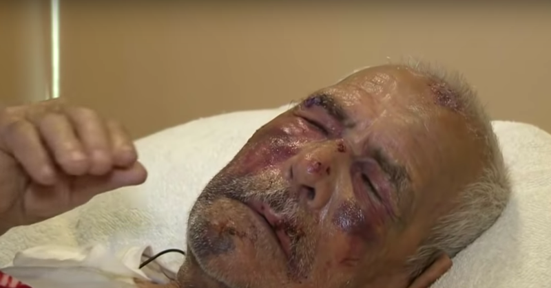Rodolfo Rodriguez, 92, recovers from a brutal July 4 attack