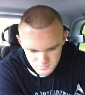 Illustration for article titled Wayne Rooney's Bloody Hair Plugs Are Literally Bloody