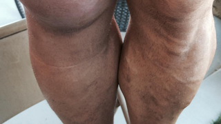 Ryback's Staph Infection Is Very Gross