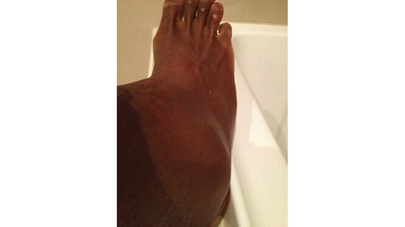 Illustration for article titled Serena Williams' Swollen Ankle Gives Our Ankles Sympathy Pains