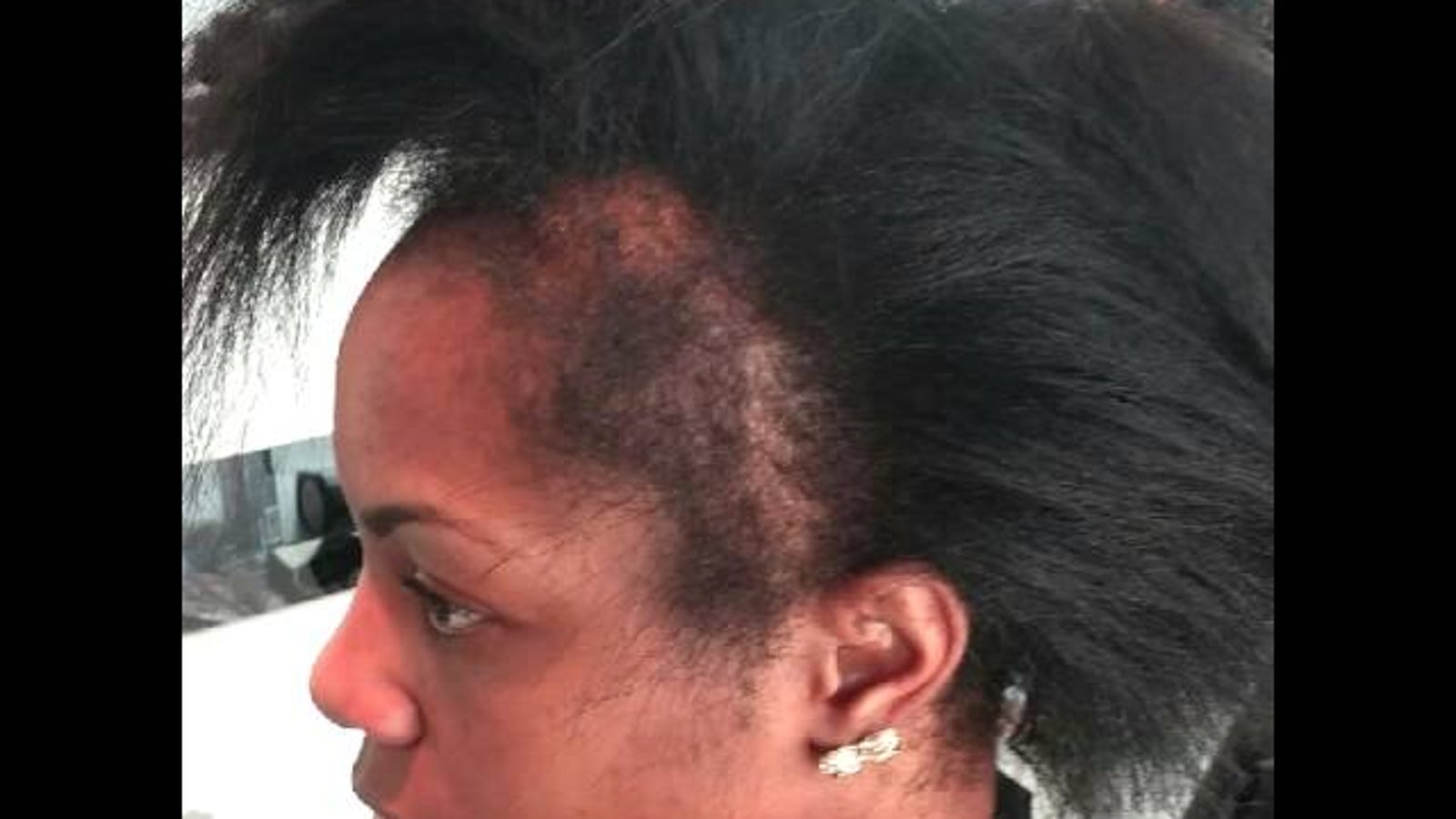 Missing Your Edges Razor Chic Salon In Atlanta Has A Solution