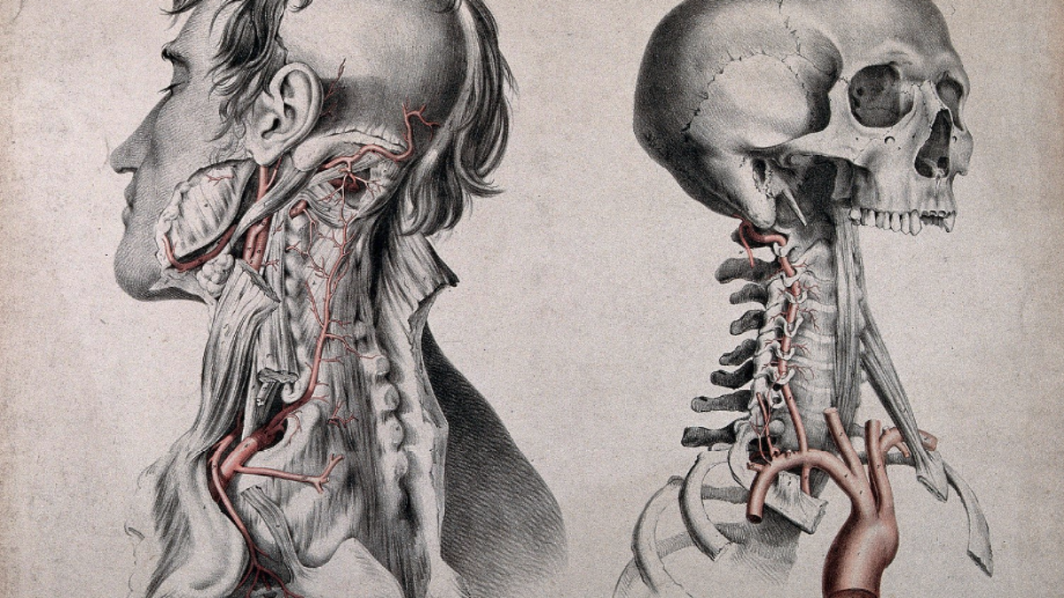 The Butchering Art: Victorian Medicine, From Blood-Caked Aprons and ...