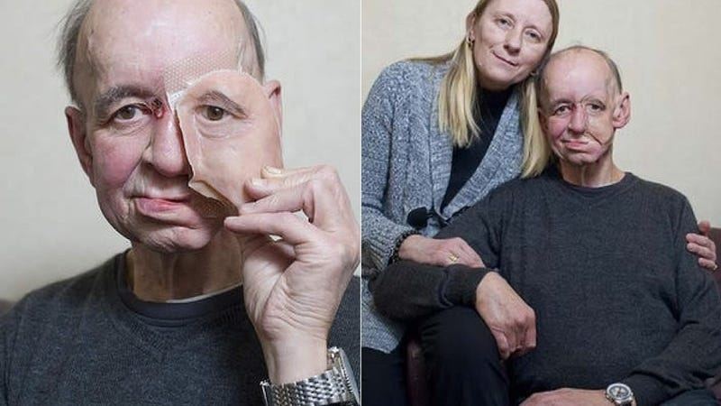 Illustration for article titled How 3D Printing Gave This Man His Life (and Face) Back
