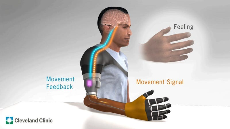 A model of how the vibration device, developed by Paul Marasco and his team at the Cleveland Clinic, can fool a person's brain into believing a prosthetic limb is actually real.