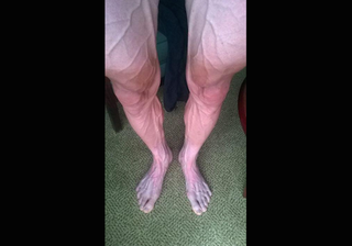 Illustration for article titled This Is What Your Legs Look Like After A Stage Of The Tour de France
