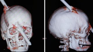 Illustration for article titled Construction Worker Impaled Through the Brain Is a Modern-Day Phineas Gage