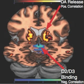 Illustration for article titled One brain scan could reveal whether you're at risk of drug addiction