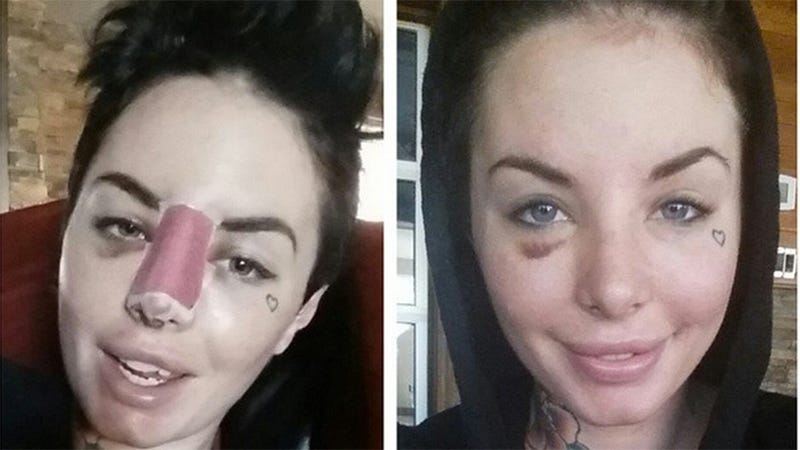 Illustration for article titled Christy Mack Posts Recovery Photos, Is Called a Dick-Sucking Whore