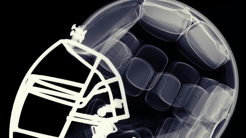 Illustration for article titled TheFrontlinereport ESPN was too afraid (of the NFL?) to cosign