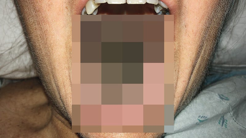 A new report in the New England Journal of Medicine describes a particularly severe case of black hairy tongue (pictured).
