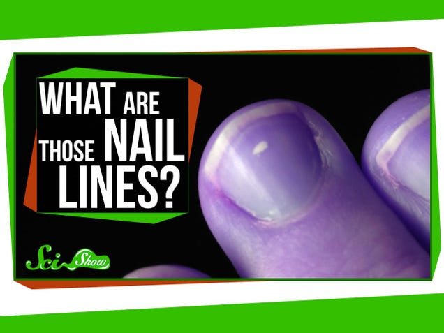 Why You Get White Spots On Your Nails