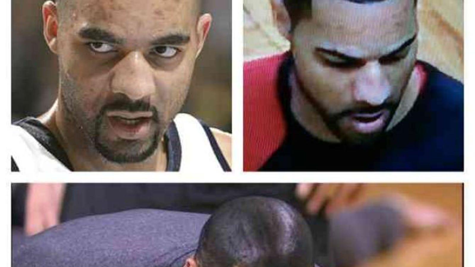 Bigen The Black Magic Solution For Male Baldness