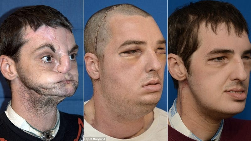 Illustration for article titled The Man Who Went Under the Most Extensive Face Transplant Ever Has an Amazing New Face