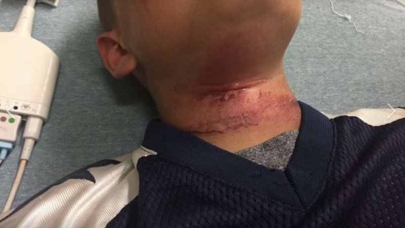 New Hampshire Police Refuse to Release Information on Case of 8-Year-Old Biracial Boy Who Was Nearly Lynched