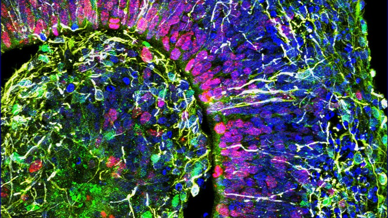 Scientists See Human-Like Brain Waves in Lab-Grown Mini-Brains