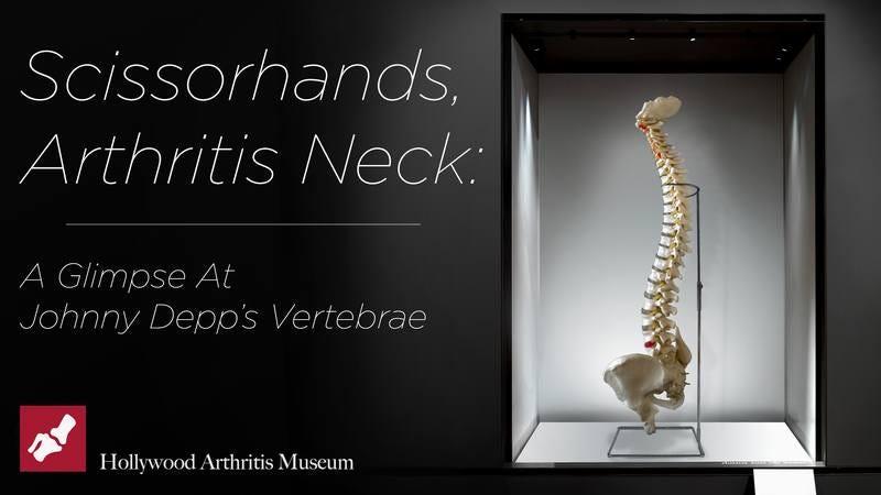 A display of Johnny Depp's vertebrae at the Hollywood Arthritis Museum.
