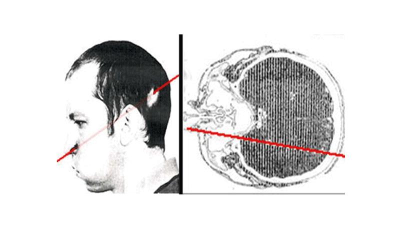 Qué ocurre si metes la cabeza en un acelerador de partículas en funcionamiento: el incidente Petrovich