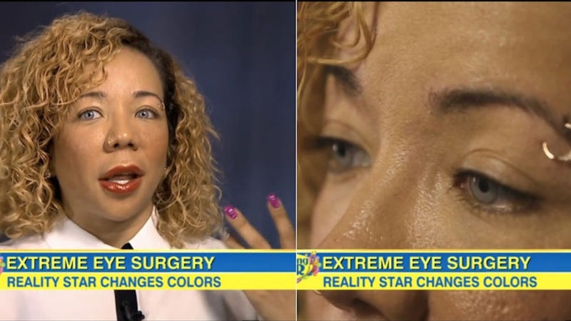 how tinys eye color changing surgery actually works - Eye Color Change Surgery Before And After