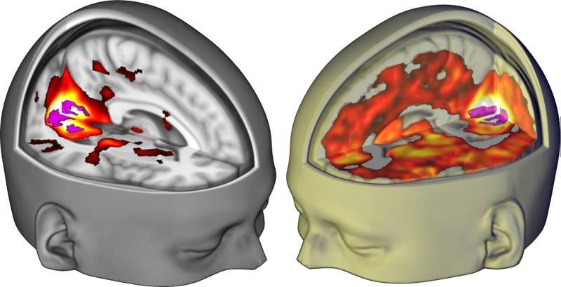 A la izquierda, el efecto bajo el efecto placebo de LSD. A la derecha, bajo los efectos de la droga.