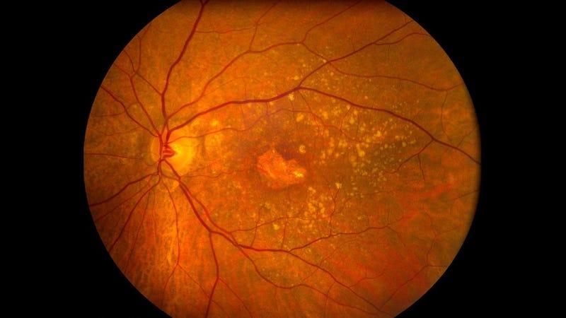 A retina with macular degeneration. (Image: University of Iowa)